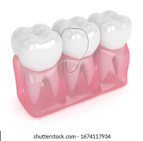 3d render of jaw with treatable cracked tooth over white background. Fractured cusps. Different types of broken teeth concept.
