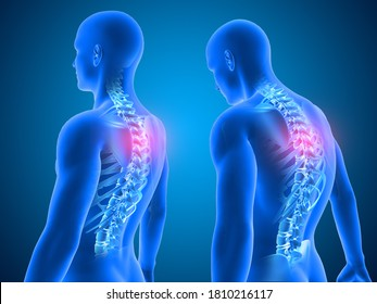 3D render of a Medical background showing good and poor posture with spine highlighted