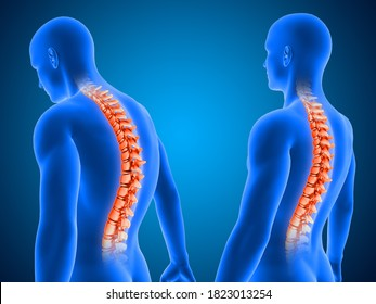 3D render of a medical background showing correct and poor posture with spine highlighted