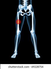 3D render of a medical female skeleton with a broken leg bone highlighted