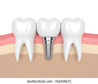 3d render of teeth with dental implant in gums over white background