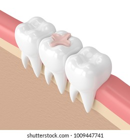 3d render of teeth with dental inlay filling in gums