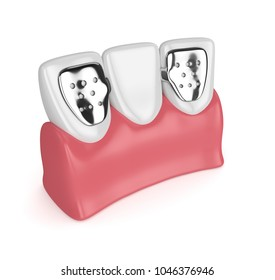 3d render of teeth with dental maryland bridge in gums  isolated over white background