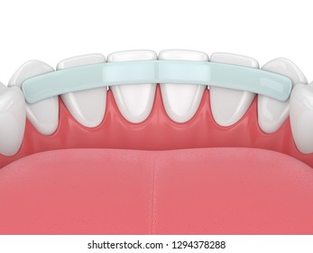 3d render of  teeth with dental reinforcement fiber over white