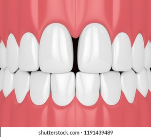 3d render of teeth with diastema. Dental disfunctions concept.