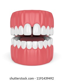 3d render of teeth with diastema over white background