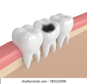 3d render of teeth  in gums with decay over white background
