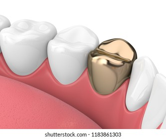 3d render of teeth  in gums with golden dental crown over white background