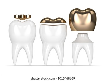3d render of teeth with inlay, onlay and crown gold filling over white background