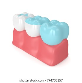 3d render of teeth with inlay, onlay and crown filling in gums over white background