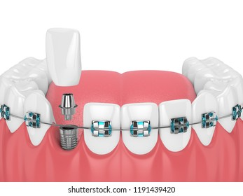 3d render of teeth with orthodontic braces and dental implant. Orthodontic braces concept