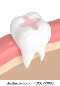 3d render of tooth with dental inlay filling in gums