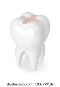 3d render of tooth with dental inlay filling isolated over white background