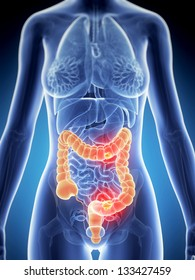 3d rendered illustration of colon cancer