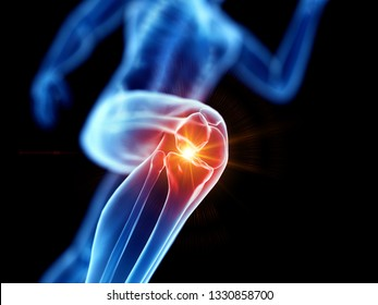 3d rendered illustration of a joggers painful knee