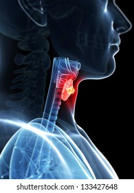 3d rendered illustration of a thyroid cancer