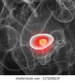 3d rendered medically accurate illustration of bladder cancer