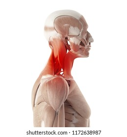 3d rendered medically accurate illustration of painful neck muscles