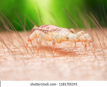 3d rendered medically accurate illustration of a head louse on human skin