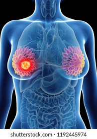 3d rendered medically accurate illustration of a womans mammary glands cancer