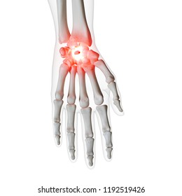 3d rendered medically accurate illustration of a painful wrist