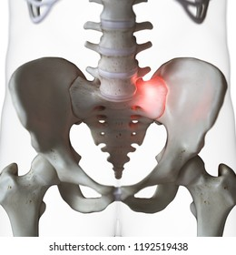 3d rendered medically accurate illustration of a painful sacrum joint