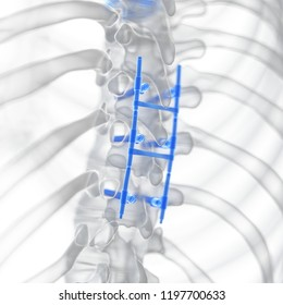 3d rendered medically accurate illustration of a spinal fusion