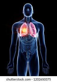 3d rendered medically accurate illustration of a mans lung cancer
