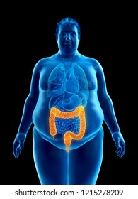 3d rendered medically accurate illustration of an obese mans colon