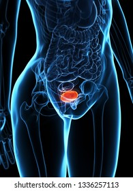 3d rendered medically accurate illustration of a diseased bladder