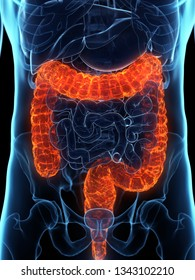 3d rendered medically accurate illustration of a diseased colon