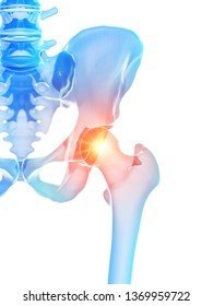 3d rendered medically accurate illustration of the hip joint showing pain