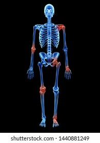 3d rendered medically accurate illustration of arthrosis in the joints