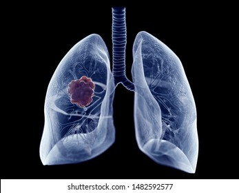 3d rendered medically accurate illustration of a lung tumor