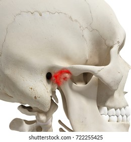 3d rendered medically accurate illustration of an arthritic mandible joint
