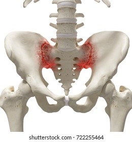 3d rendered medically accurate illustration of an arthritic sacrum