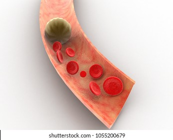 3d rendering blood cells with plaque buildup of cholesterol symbol of vascular illness