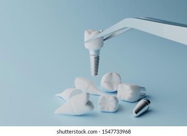 3D rendering Dental implantation concept. Human teeth or dentures tools.