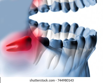 3D rendering embedded teeth Xray view