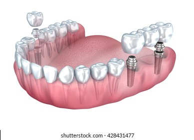 3D rendering : lower teeth and dental implant transparent render isolated on white