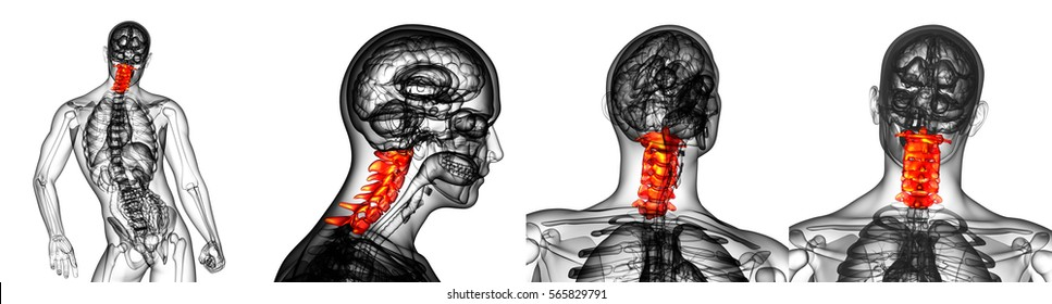 3d rendering medical illustration of the red cervical spine x-ray collection