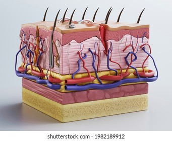 3D Skin cross sections-damaged skin illustration