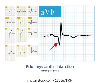 A 63-year-old male who suffered from myocardial infarction 1 year ago. The outpatient follow-up ECG showed pathological Q waves.