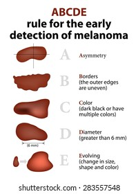 ABCDE Rule for the early detection of Melanoma