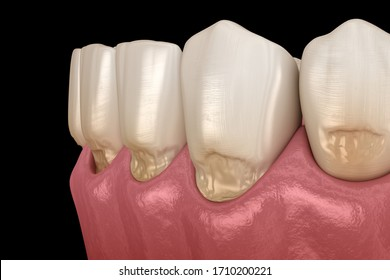 Abfraction of anterior teeth. Medically accurate 3D illustration