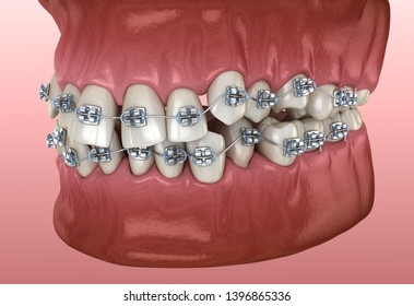 Abnormal teeth position and metal braces tretament. Medically accurate dental 3D illustration