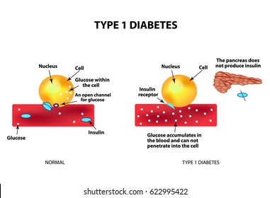 The absorption of glucose by the cell. Type 1 diabetes. Increase and decrease blood sugar. Insulin. Infographics. illustration on isolated background