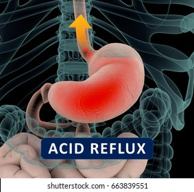 Acid reflux, GERD. Gastroesophageal reflux disease. Stomach and digestive. Human anatomy. 3d illustration