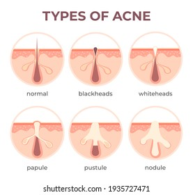 Acne types anatomy. Pimple diseases sectional view blackhead, cystic and whitehead. Structure of skin and pore infection  infographic