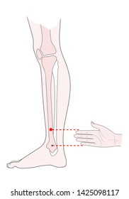 Active acupuncture points on the legs:  bove the ankle.